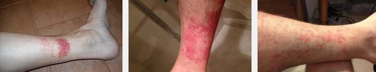 hikers rash